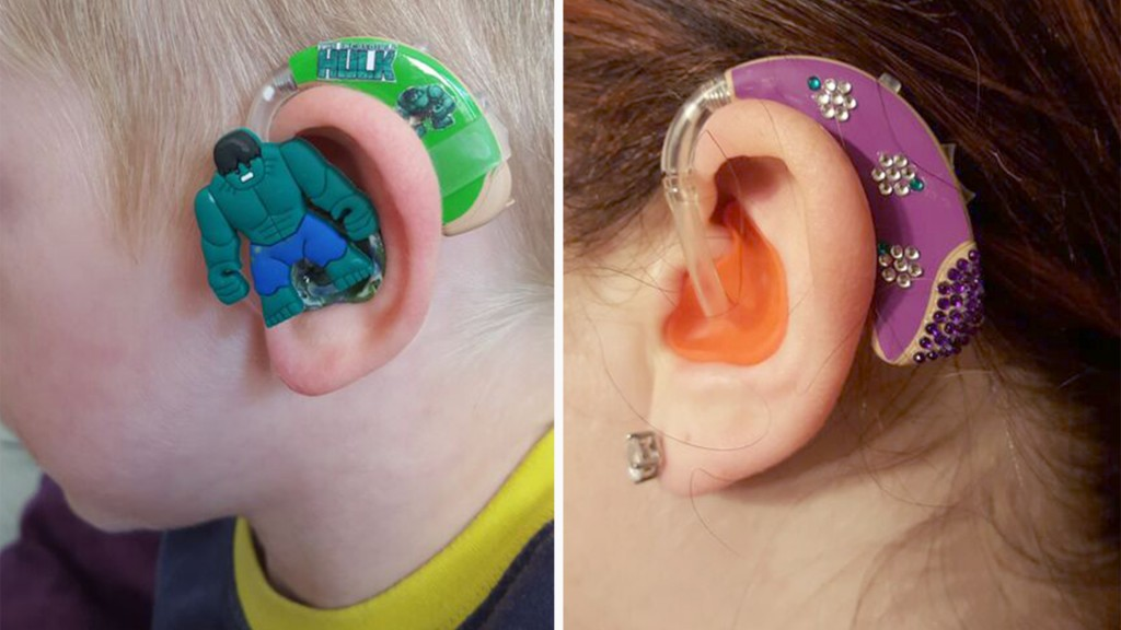 Mother to a partially deaf boy, Sarah Ivermee started selling hearing-aid decals for kids who might not otherwise be excited about wearing an earpiece.